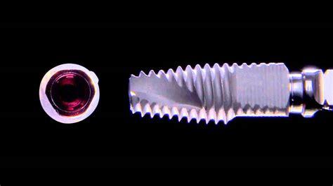 дизайн (mis V3 Implant)
