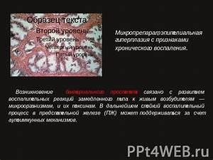 Лук от хронического простатита