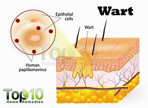 Blister Wart Diagram