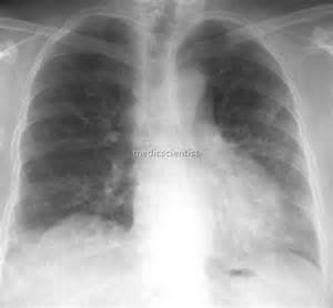 Interstitial Lung Diseases Clinical Features examination Treatment ... Interstitial lung disease