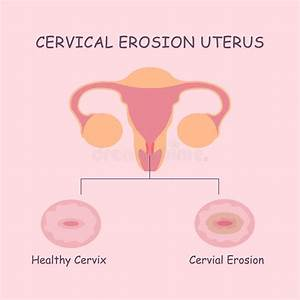 Uterus And Cervical Erosion Stock Vector