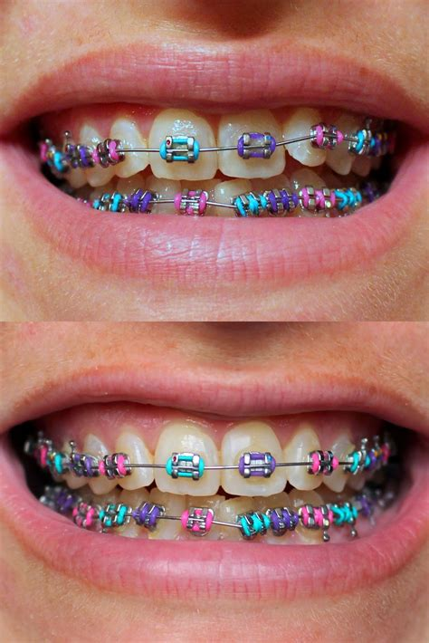 Light Pink Braces For Teeth  Surgery Pics