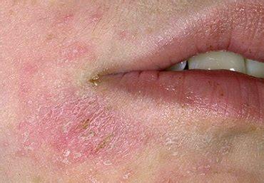 Kožní melanom