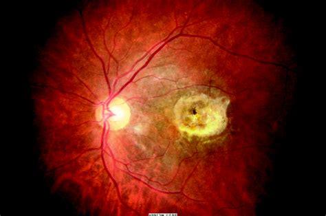 blue light macular degeneration macular drusen young adults trooperweren tk