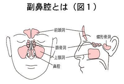 副 鼻腔 炎 自力 で 治す