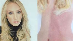 Woman has two skin tones after fusing with unborn sister ...