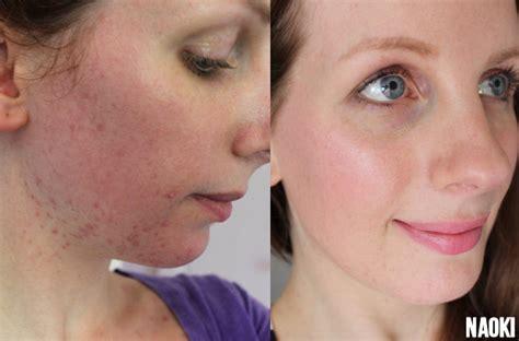 Kokosolie huid gezicht