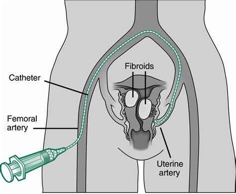 Uterine Fibroid Embolization Ric Radiology