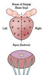 Biopsy of the Prostate - Pictures