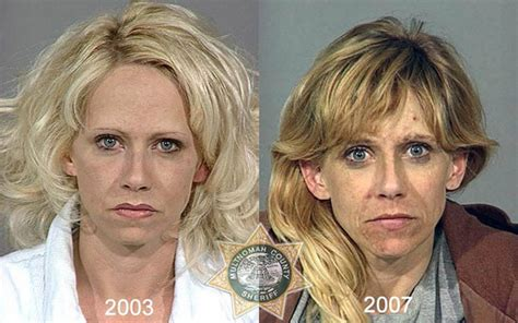 shocking    pics  drug abusers show