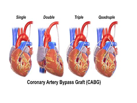 coronary artery bypass operation