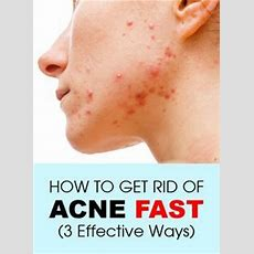 How To Get Rid Of Acne Fast (3 Effective Ways)  Natural, Simple And How To Get Rid