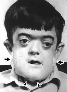 Malignant Infantile Osteopetrosis