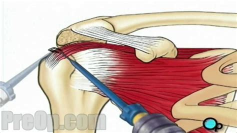 Rotator Cuff Repair Arthroscopic Surgery Preop Patient