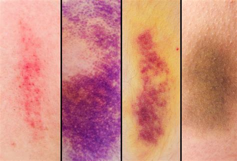 bruise colors bruises in pictures what the black and blue is telling you