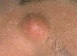 Чем в домашних условиях удалить плоские бородавки на лице