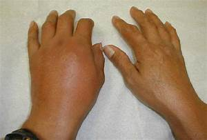Description Of Gout