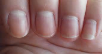 white nail beds causes and treatments md health