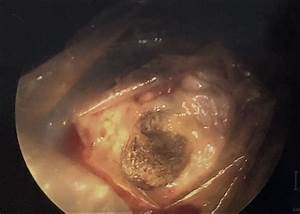 Of Ovarian Cyst