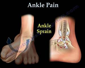 Ankle Pain  Ankle Ligaments Sprain - Everything You Need To Know - Dr  Nabil Ebraheim
