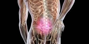 Стоимость лечения остеохондроза красноярск
