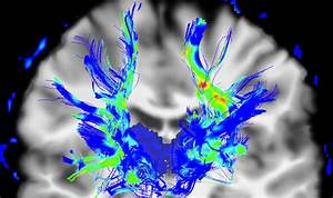Parkinson's disease cure? BREAKTHROUGH could reverse ...