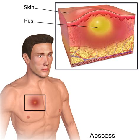 Abscess Causes Symptoms Pictures Treatment