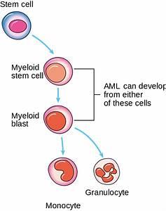 Acute Myeloid Leukemia  Aml   U2014 Classification And Survival Rate