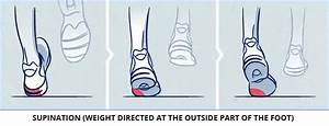 Foot Pronation Guide