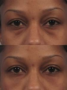 Dark Circles/Eye Bags | Dr. Brett Kotlus, Cosmetic ...