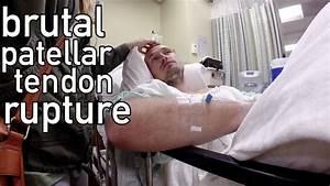 Brutal Patellar Tendon Rupture W   Surgery