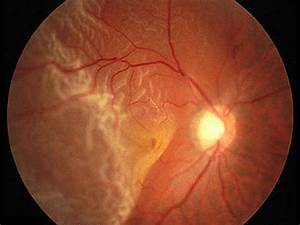 Serous retinal detachment treatment - Doctor insights on ...