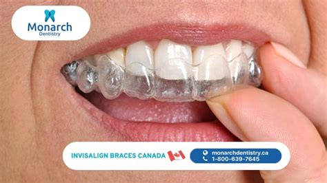 A look at the top dental plans for seniors, what they cover, what they cost and everything else you need to know before choosing the right dental coverage. Are dental braces covered under Canada's health insurance? What about Invisalign? - Quora