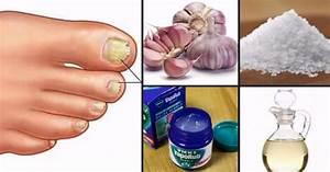 Средство для лечения грибка ногтей на ногах российского производства