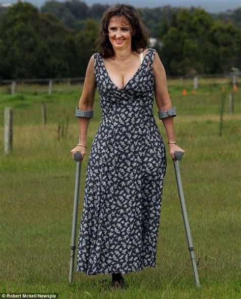 Woman On Crutches Maxi Dress Women Dresses