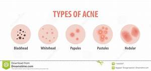 Types Of Acne Diagram Illustration Vector On White