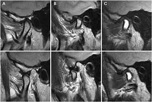 Артроз челюстного сустава диагностика и лечение