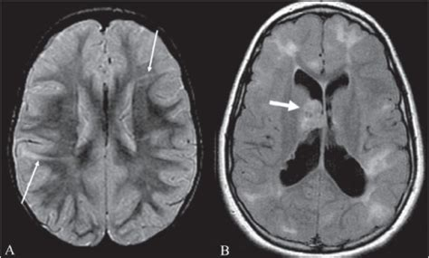 Proton Density Weighted Mri by Radial Band Sign Proton Density Weighted Axial Image O