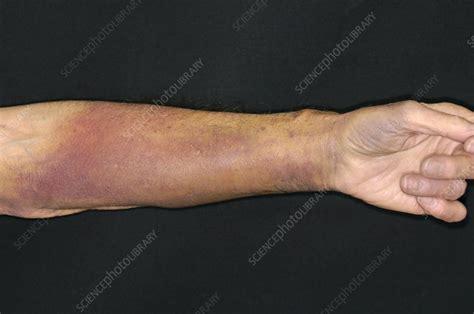 bruised warfarin patients arm stock image