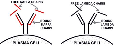 kappa free light chain high case 24 summary teamhaem