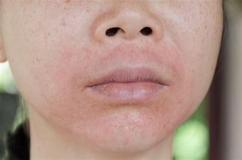 rosacea appears   linked  multiple sclerosis