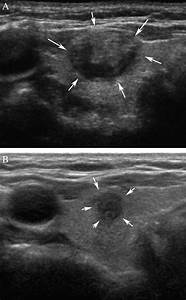 Suspiciously Malignant Findings On Ultrasound After Fine