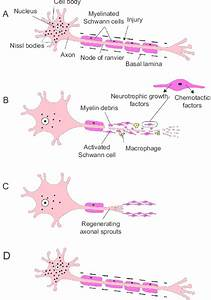 Wallerian Degeneration In Peripheral Nervous System And Axonal