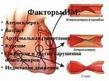 Ожирение и гипертония презентация