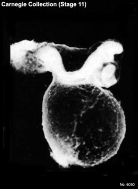 Carnegie stage 11 - Embryology