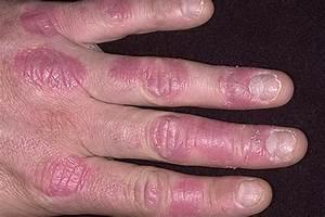 Сухость и трещины рук от псориаза