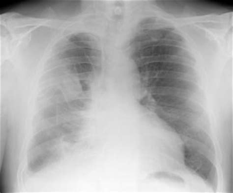 lung cancer  pictures