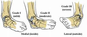 Ligament Sprains  How It Happens And How Physiotherapy Can
