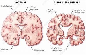 Alzheimer's Disease Brain, Illustration - Stock Image C027 ...