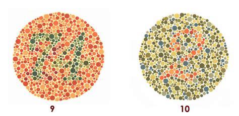 tavole dei colori malattie legate al superagatoide